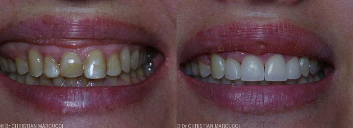 Que vous soyez une femme, un homme ou un enfant, les docteurs Marcucci et Combes traitera votre sourire avec le même professionnalisme