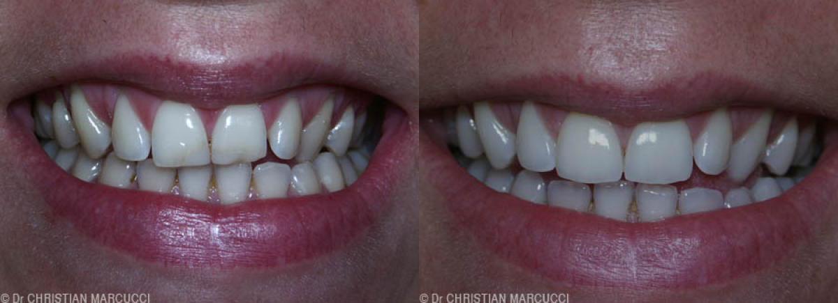 Arborez un superbe sourire grace aux docteurs Marcucci et Combes à Castelnau-le-Lez