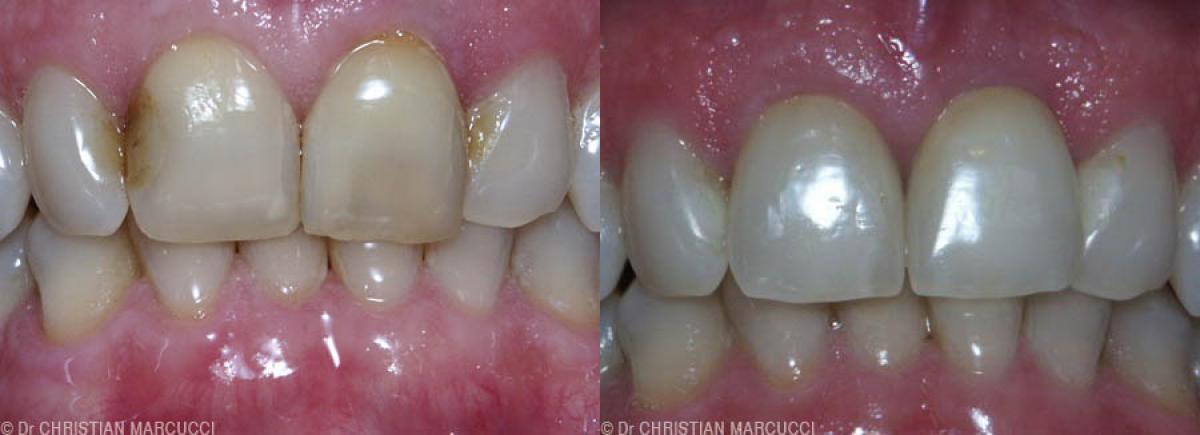 Les dentistes Marcucci et Combes prennent soin de vos dents et de votre sourire