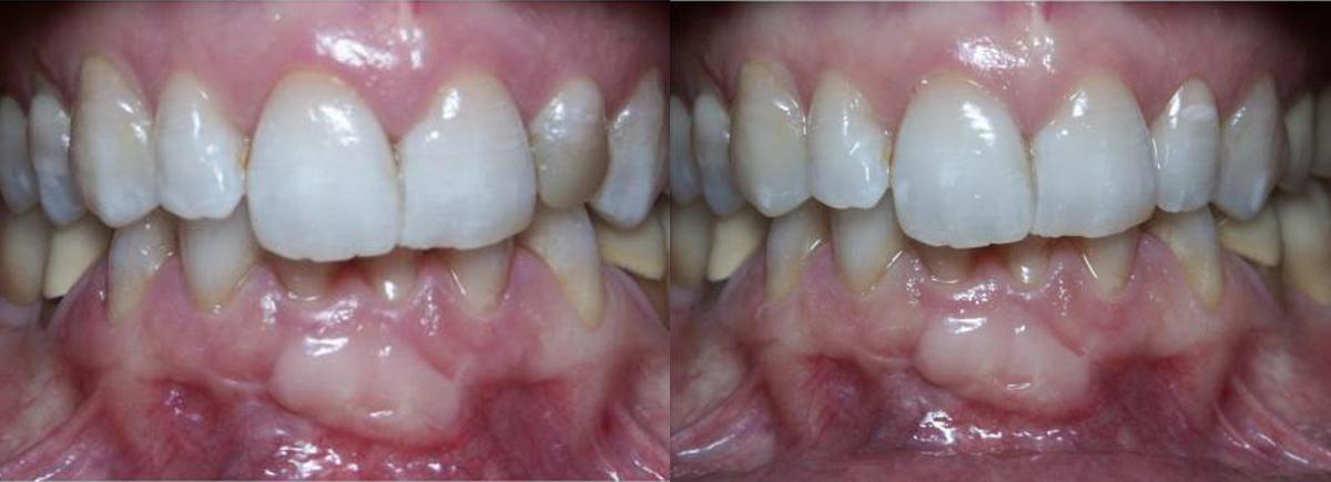 Cas clinique du cabinet dentaire Marcucci & Combes