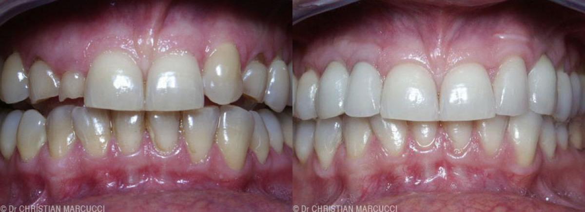 Cas clinique du cabinet dentaire Marcucci & Combes à Castelnau-le-Lez, près de Montpellier