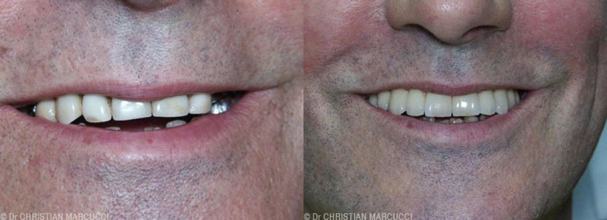 Mécontent de vos dents, les dentistes Marcucci et Combes sauront vous rendre le sourire