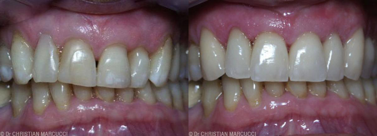 Le cabinet dentaire Marcucci & Combes vous propose les meilleurs services pour l'entretien de vos dents et de votre sourire