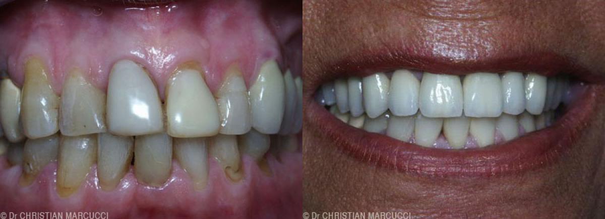 Cabinet dentaire à Castelnau-le-Lez, venez prendre soin de vos dents