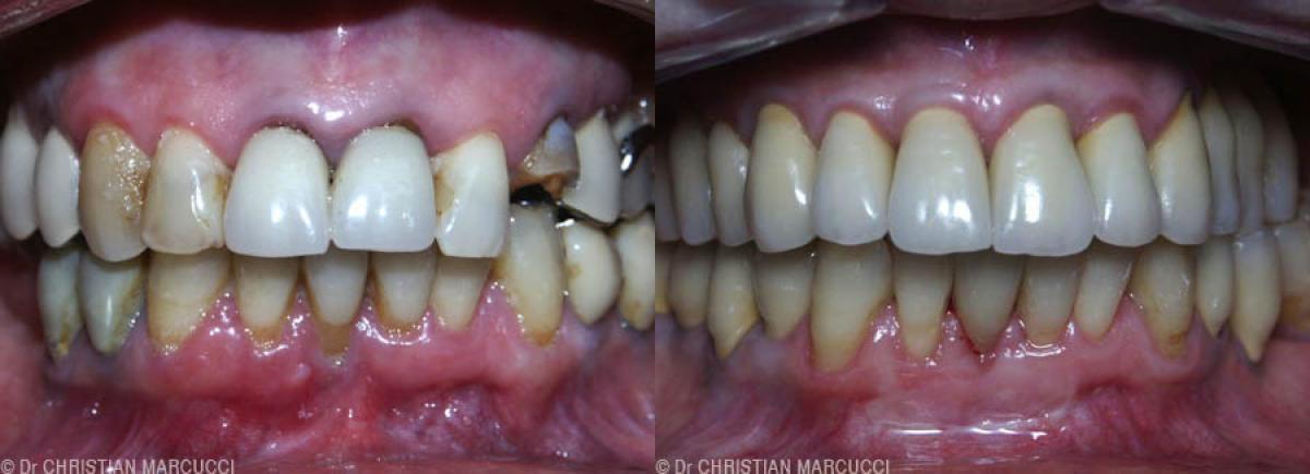 Vous vous interdisez de sourire ... venez vous libérer grace au cabinet dentaire Marcucci et Combes